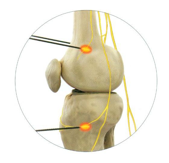 Лечение суставов нижний новгород сустав после травмы